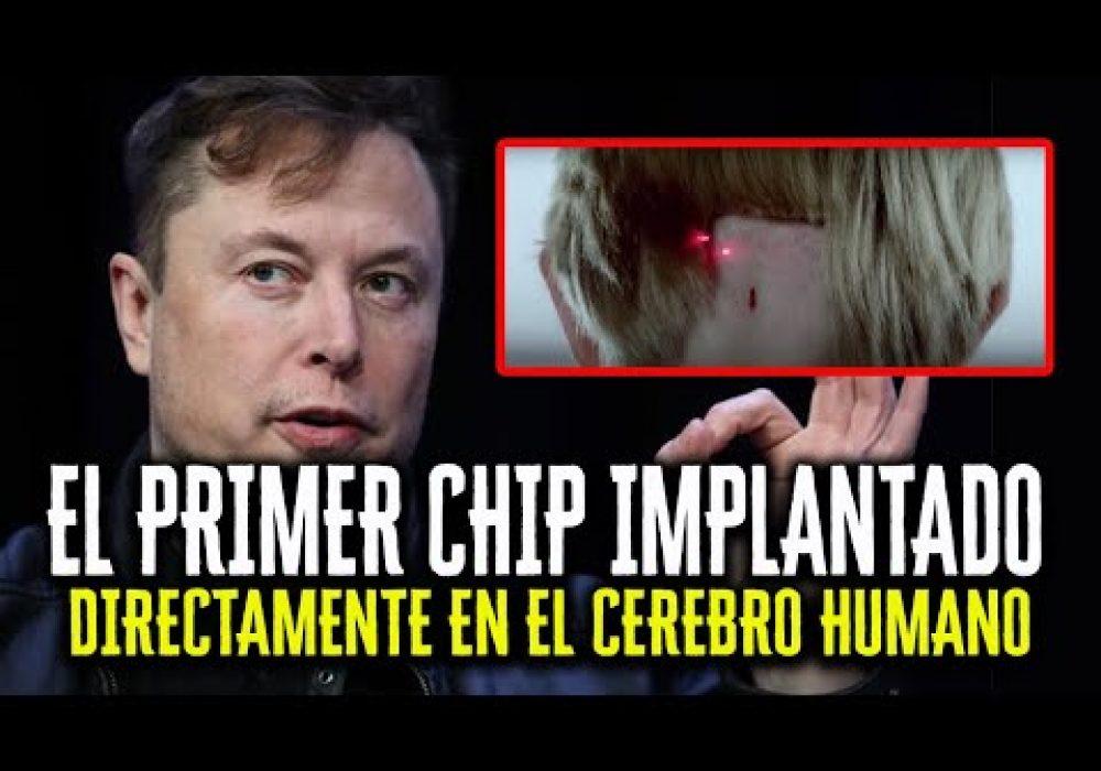 """""""Neuralink puede ser una Tragedia para la Humanidad"""" – EL PRIMER CHIP IMPLANTADO POR ELON MUSK"""